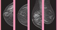 3D高清乳房造影诊断